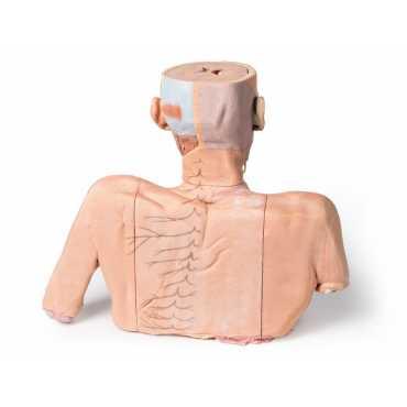 Anatomie 3D tête, cou et épaule avec angiosomes