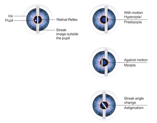 Retinoscope Refraction