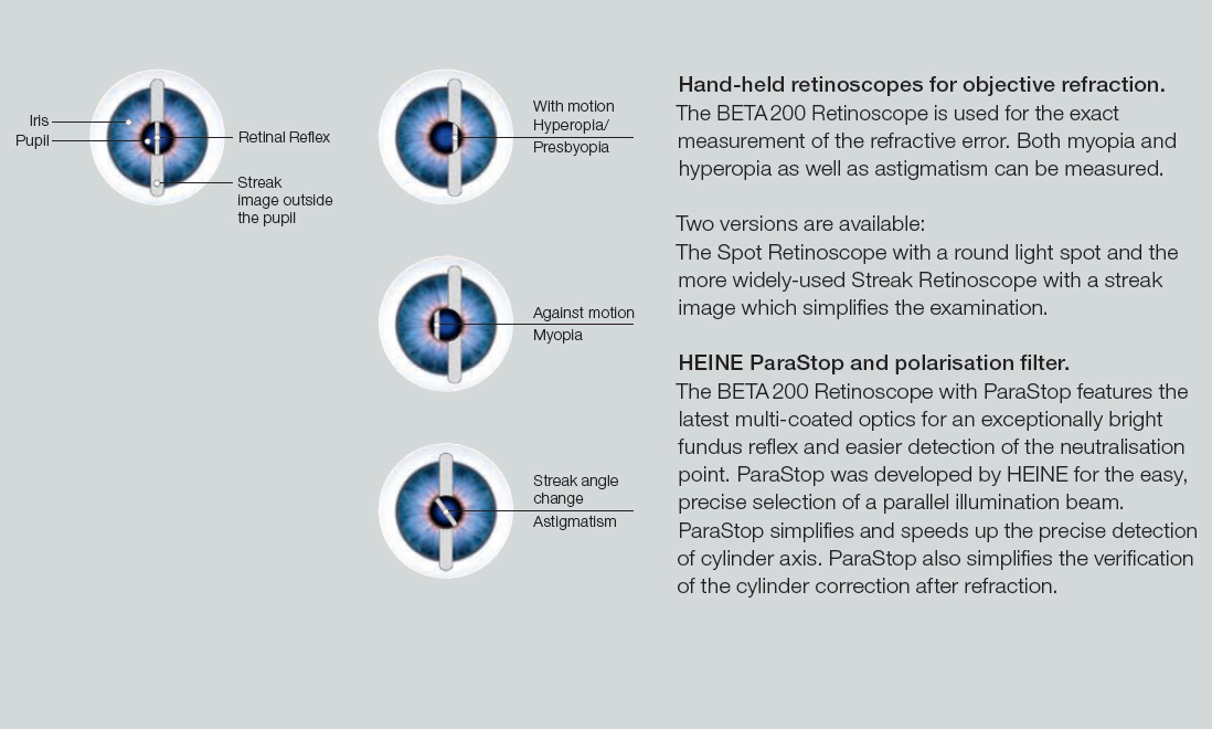 Hand-held retinoscopes for objective refraction